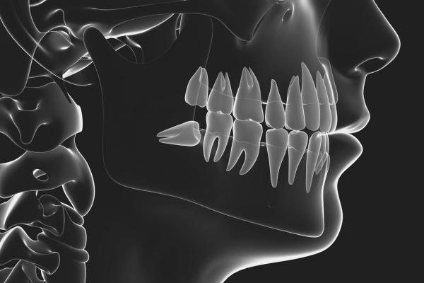 Viss, kas jums jāzina par gudrības zobiem
