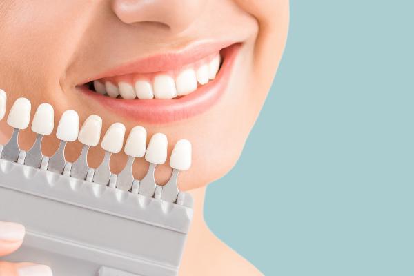 Kas zobu kroņus atšķir no citiem neizņemamo protēžu risinājumiem?