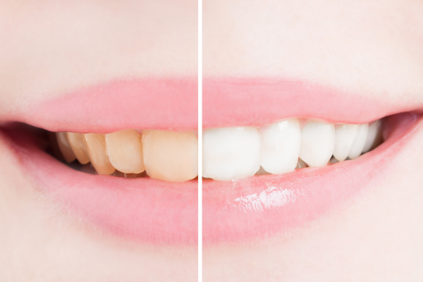 Все, что нужно знать об отбеливании зубов в домашних условиях