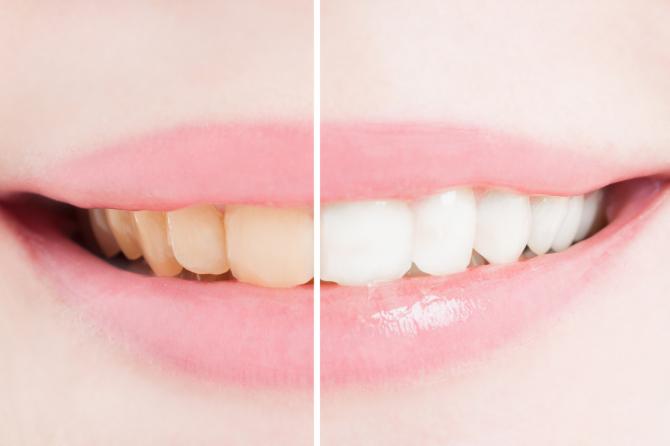 Viss, kas jāzina par zobu balināšanu mājas apstākļos
